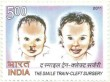 Postage Stamp on The Smile Train-cleft Surgery